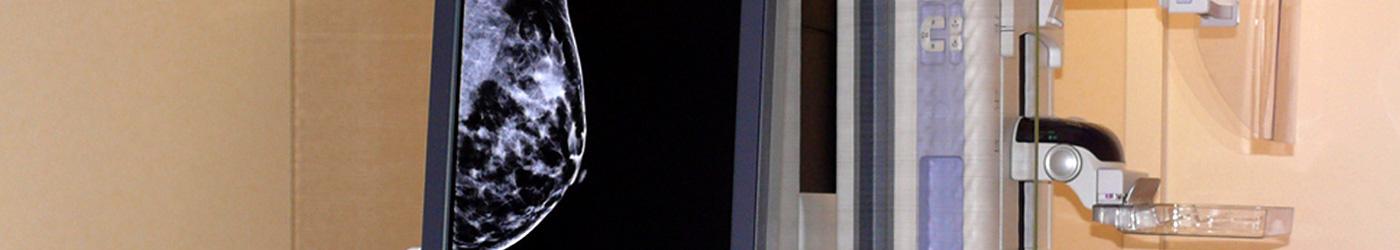 Imagen de una parte del mamógrafo con la imagen de un pecho