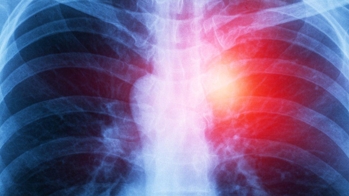 Jornada de formación en: Cáncer de pulmón no microcítico