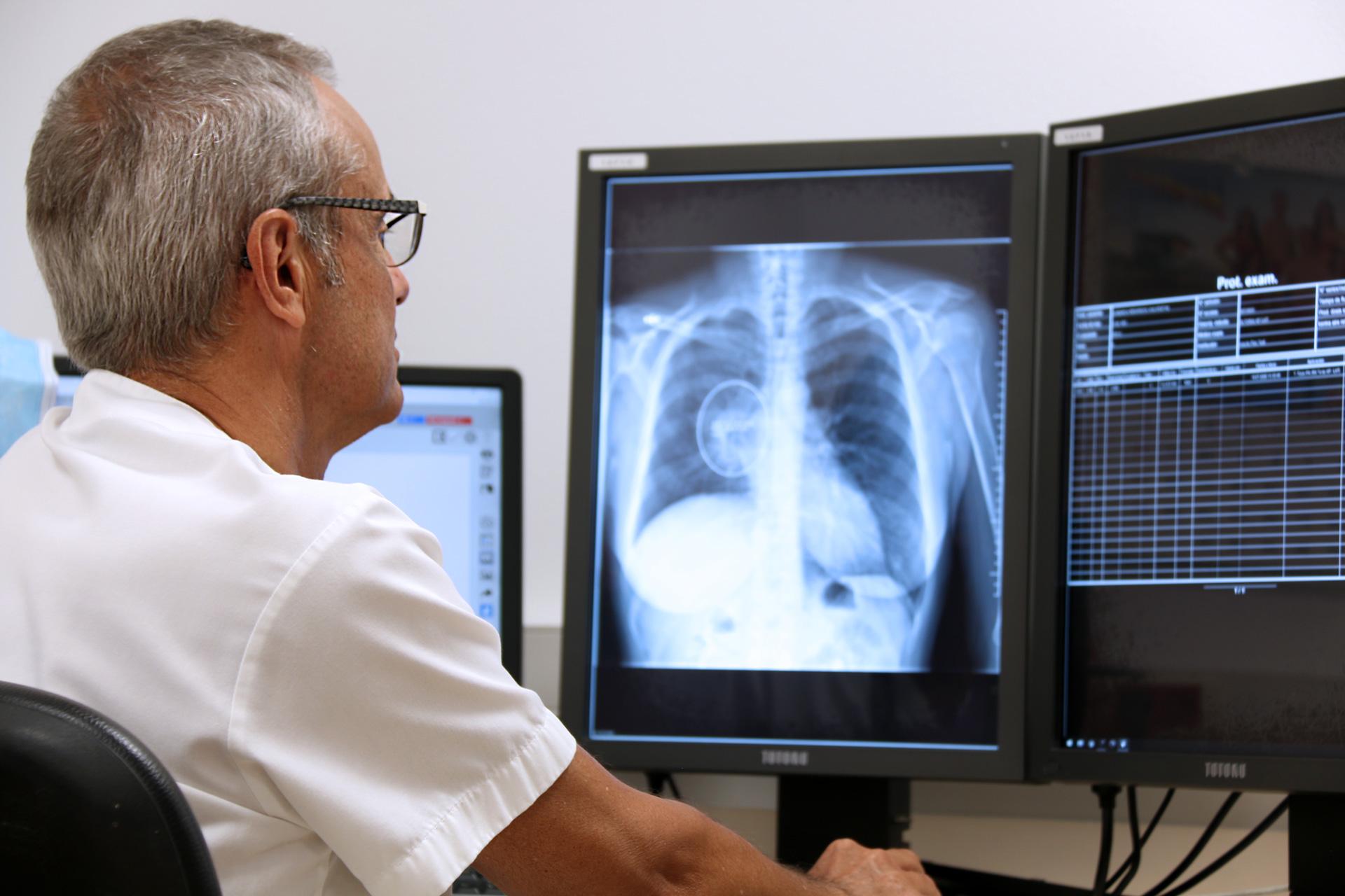 Comença una prova pilot per identificar nòduls indicadors de possibles càncers pulmonars en radiografies mitjançant tecnologia Deep Learning