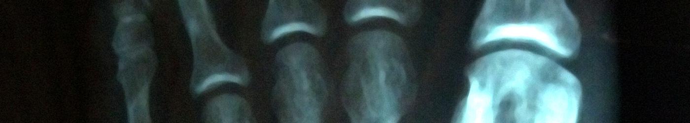 Imagen de la radiografía de la parte de los dedos del pie